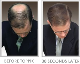 Thin hair solutions hairstyling for thin hair thin hair stylist male before and after toppik pmusecretfo Gallery