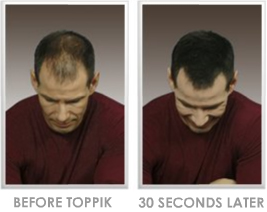 Thin hair solutions hairstyling for thin hair thin hair stylist male before and after toppik male before and after toppik female hair pmusecretfo Gallery